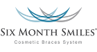 Six Month Smiles Cosmetic Braces